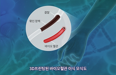 기계 조동우 교수팀, '3D프린터'로 몸속 혈관과 똑같은 혈관 만든다